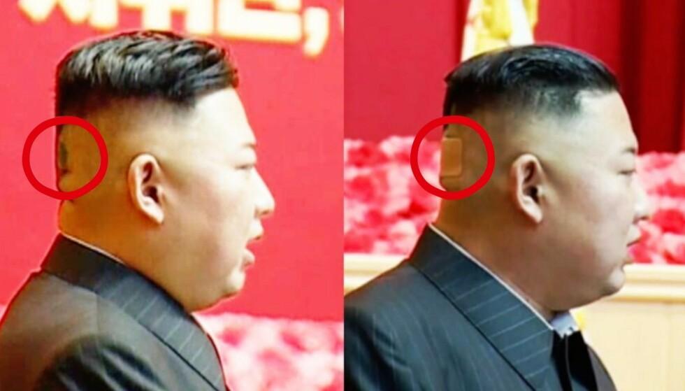 Speculatie: Clips van KCTV tonen Kim Jong Un twee keer met en zonder de patch tijdens een militaire conferentie op 24-27 juli.  Foto: KCTV van 30 juli