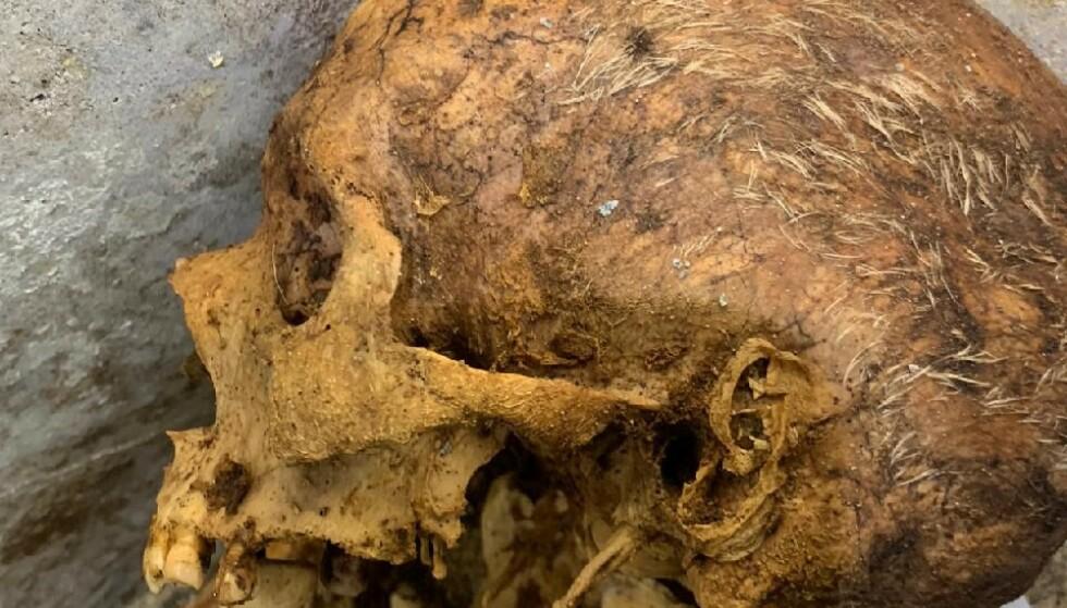 Haar: Je kunt duidelijk de witte haren op de menselijke resten zien.  Foto: Archeologisch Park Pompeii