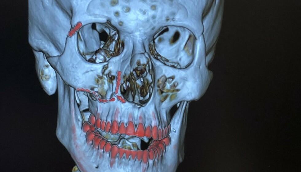 BRUDD: De røde strekene markerer titanplatene legene måtte operere i bruddene. Foto: Privat.