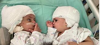 Tvillingsøstre skilt etter ett år