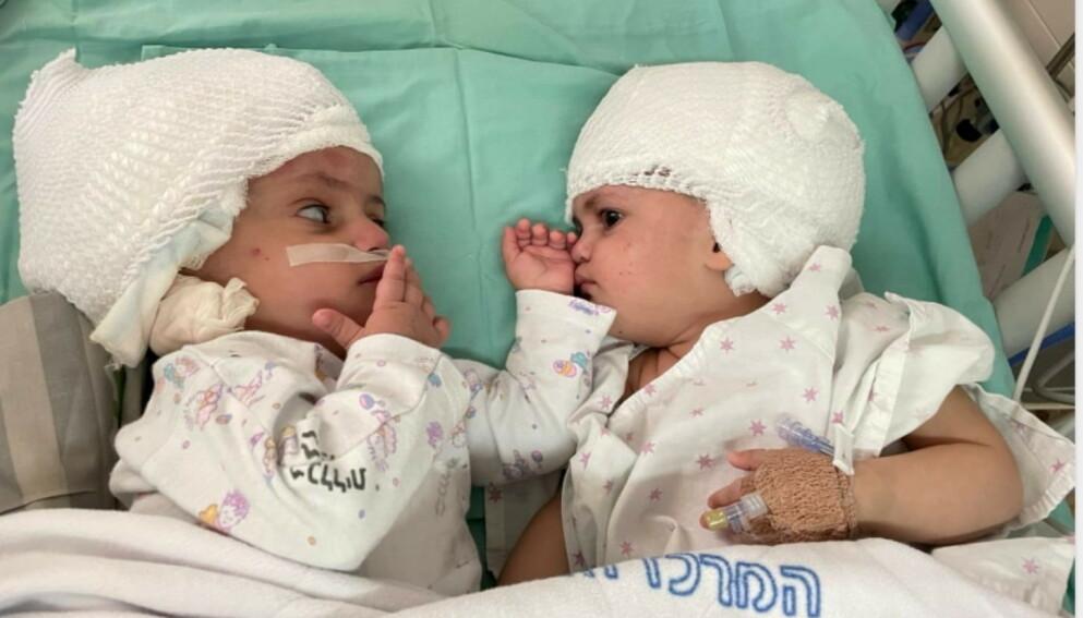 FØRSTE MØTET: Første ordentlige møtet mellom det israelske tvillingparet. For første gang kunne jentene se hverandre i øynene, etter å ha vært bundet sammen i bakhodet fra fødselen. Foto: Reuters / NTB