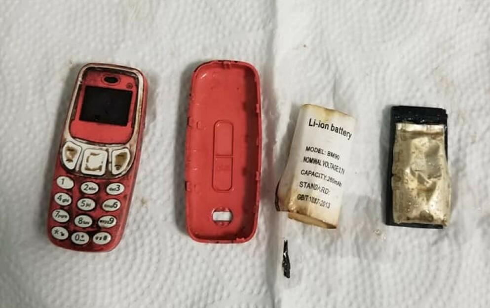 MOBILKLASSIKER: En mann fra Kosovo måtte hasteopereres etter at han på utrolig vis fikk i seg en gammel Nokia-telefon. Foto: Skender Telaku