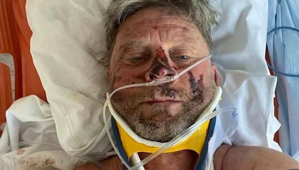 SKADET: Reidar Bjørkli kom utfor en stygg ulykke under Birkebeinerrittet i år. Foto: Privat