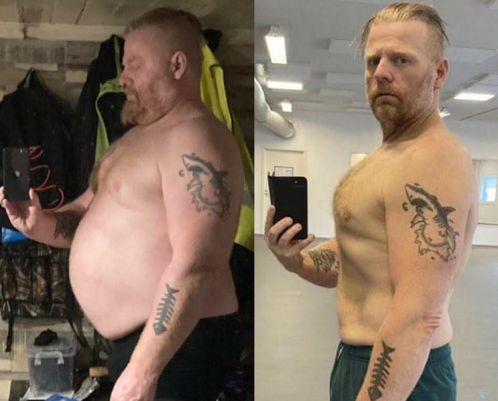 FØR OG ETTER: Martin Johansson ble kvitt både magefettet og andre helseplager med et skreddersydd slankeprogram. Foto: Privat