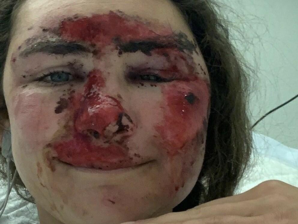 SKADET: Alice Merryweather delte flere bilder fra sykehuset på sin Instagram. Foto: Instagram/Alice Merryweather