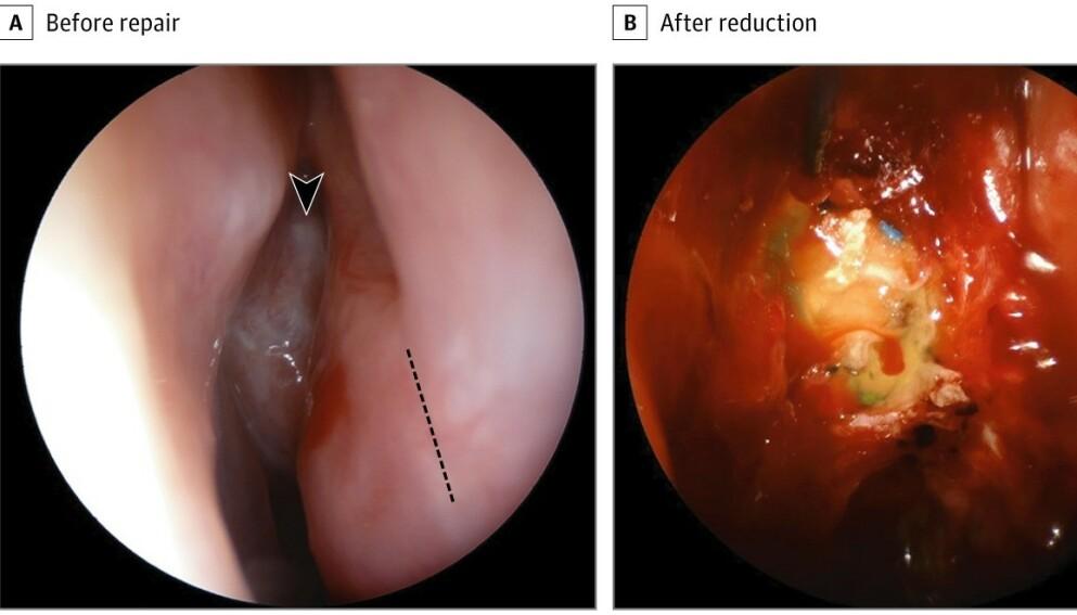 LEKKASJE: En kvinne i 40-åra fikk en sjelden komplikasjon etter coronatesting med vattpinne i nesa. Foto: JAMA Otolaryngology - Head & Neck Surgery