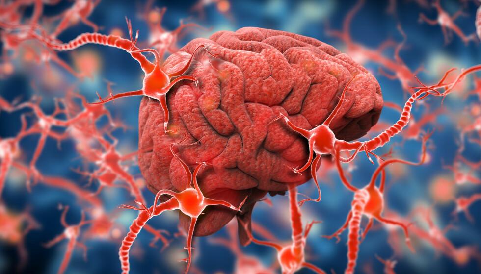NY ADHD-FORSKNING: Norske forskere omtaler funnene som viktige. Det er nå tre hovedteorier om hva årsaken til sammenhengen kan være. Foto: NTB Scanpix