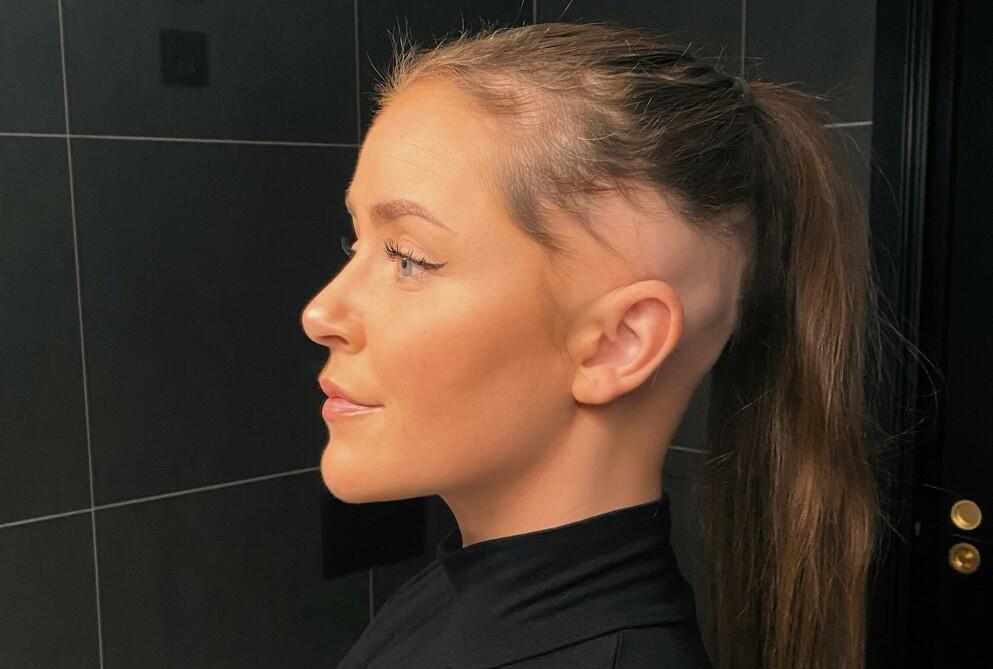 MISTER HÅRET: Siden november i fjor har 24-åringen Iselin Frantzen mistet håret på grunn av sykdommen alopecia areata. Foto: Privat