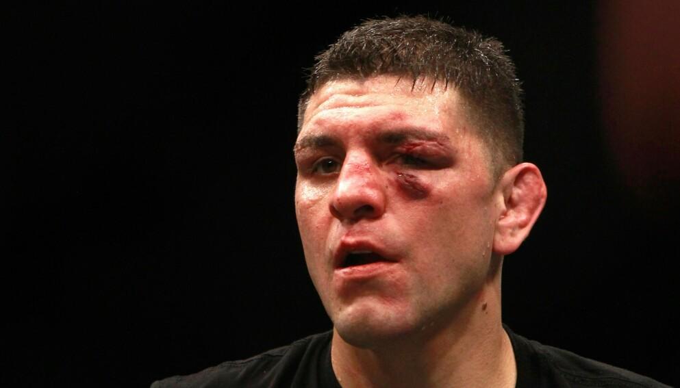 COMEBACK: Nick Diaz er tilbake i UFC-buret. Foto: Steve Marcus / Getty Images / AFP / NTB