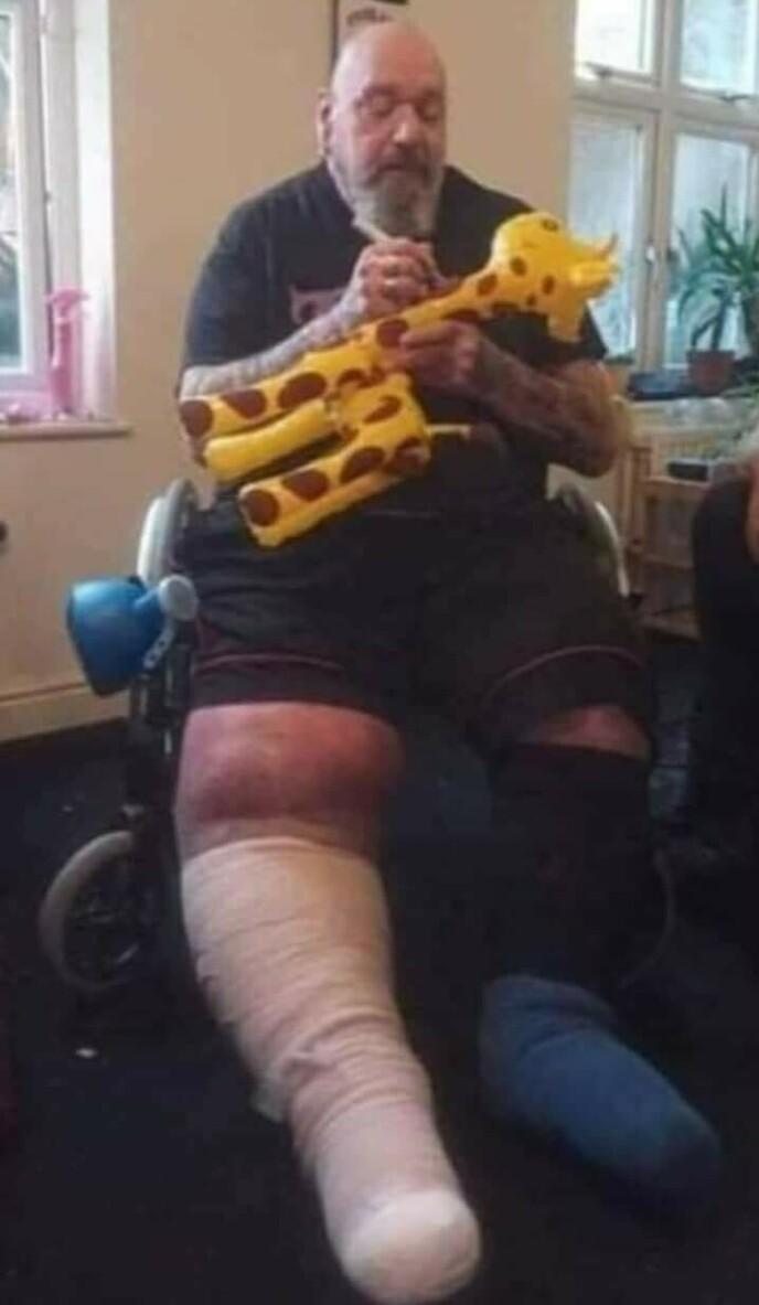 KNESKADER: Artisten har ventet på operasjon i syv år. Foto: Skjermdump fra Facebook