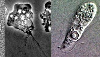 DØDELIG: Amøben Naegleria fowleri i sine ulike livsfaser, f.v. cyste, flagellat og trofozoitt (aktivt stadium). Foto: Wikimedia Commons