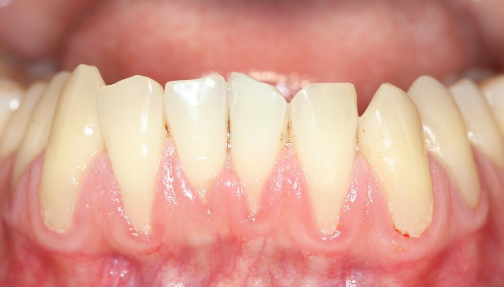 MÅ FØLGES OPP: Tannkjøttsykdommen rammer over halvparten av mennesker over 40 år, og kan ha flere risikofaktorer enn dårlige tenner. Foto: Shutterstock