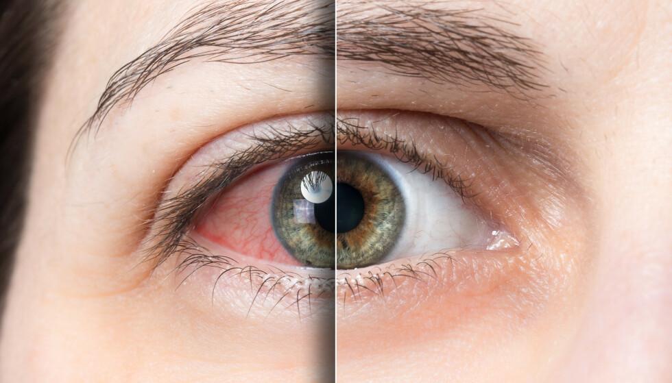 GOD HJELP FINNES: Tørre øyne er en sykdom som skyldes svekket tårefilm, og som kan gi forskjellige plager, blant annet i form av rennende øyne og lysømfintlighet. Foto: NTB Scanpix