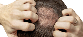 Lege: Ett middel stopper hårtap