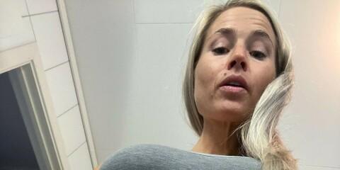 Image: Deler ærlige bilder av mammakroppen