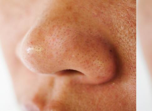 Image: Det beste middelet mot hudormer