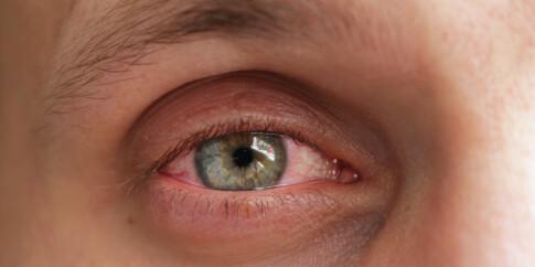 Image: De skjulte tegnene på øyesykdom