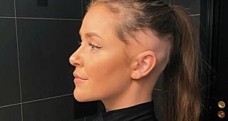 Image: Iselin (24) har alopecia: - Savner håret mitt hver dag